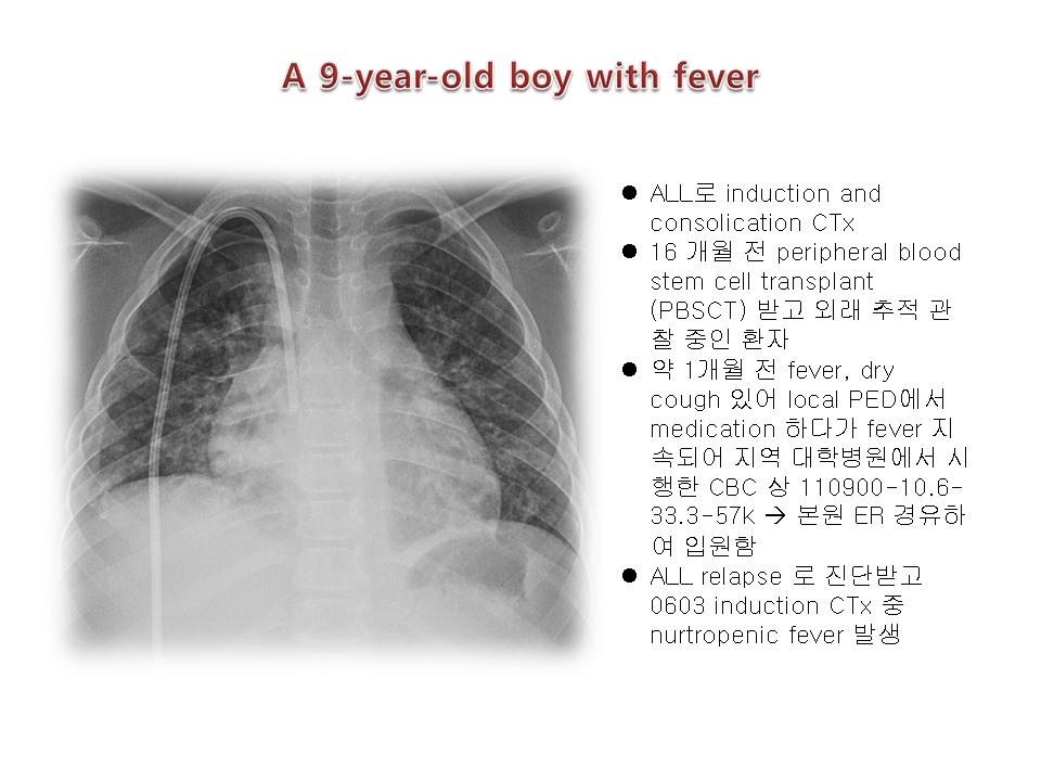 Candida pneumonia in a 9-yeal old boy (ALL patient)