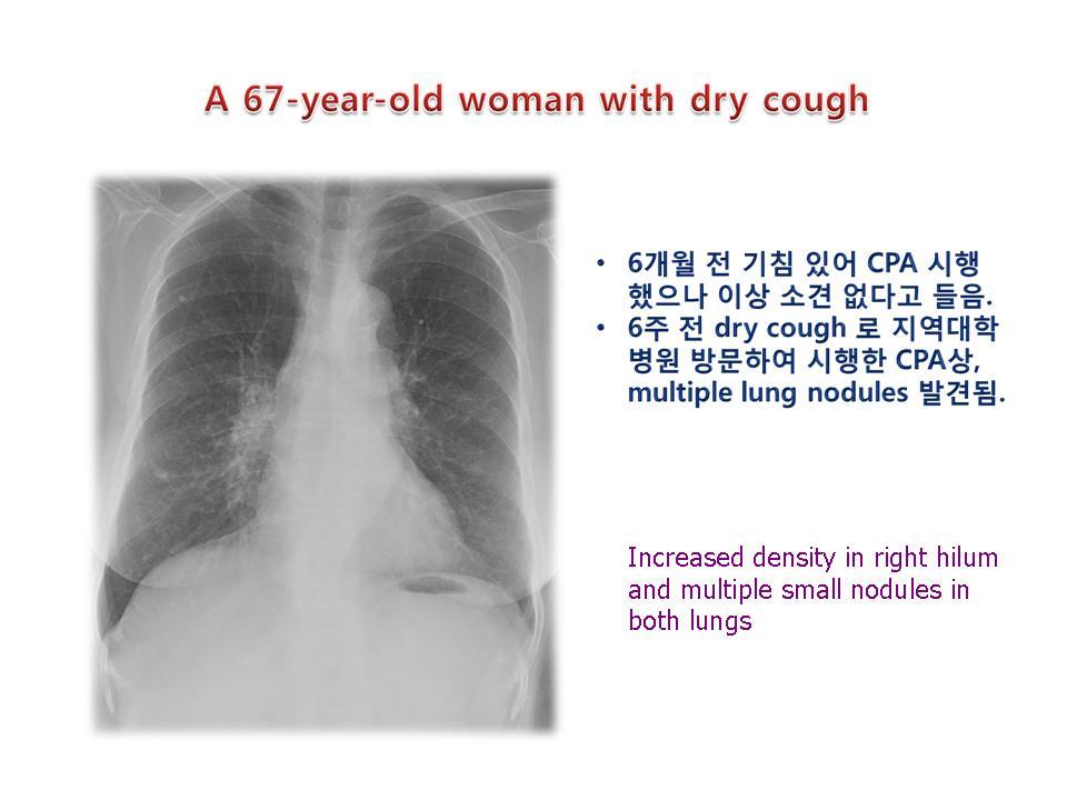 Sarcoidosis, lung