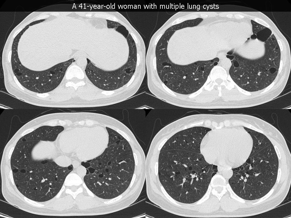 Emphysema, pareseptal type