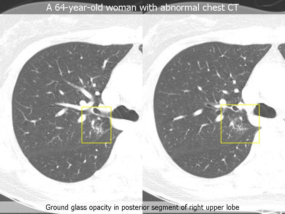 Low grade B-Cell Lymphoma of MALT (Extranodal Marginal Zone B-Cell Lymphoma), lung
