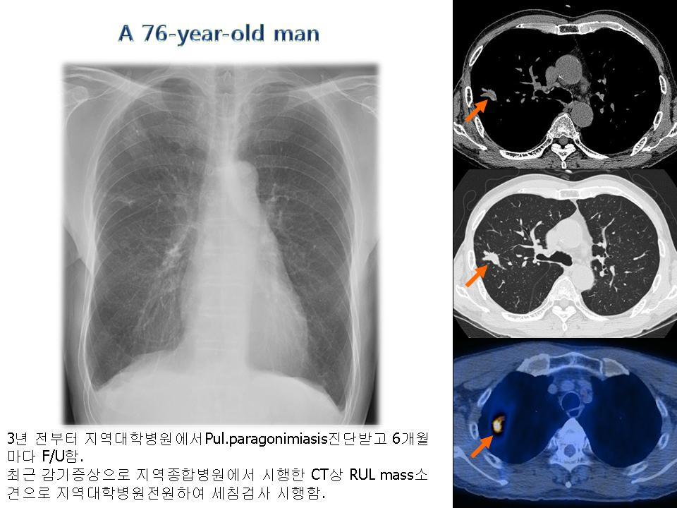 Adenocarcinoma and Paragonimiasis in lung