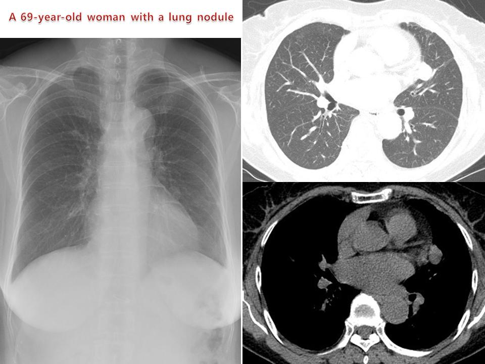A 69-year-old woman with a lung nodule
