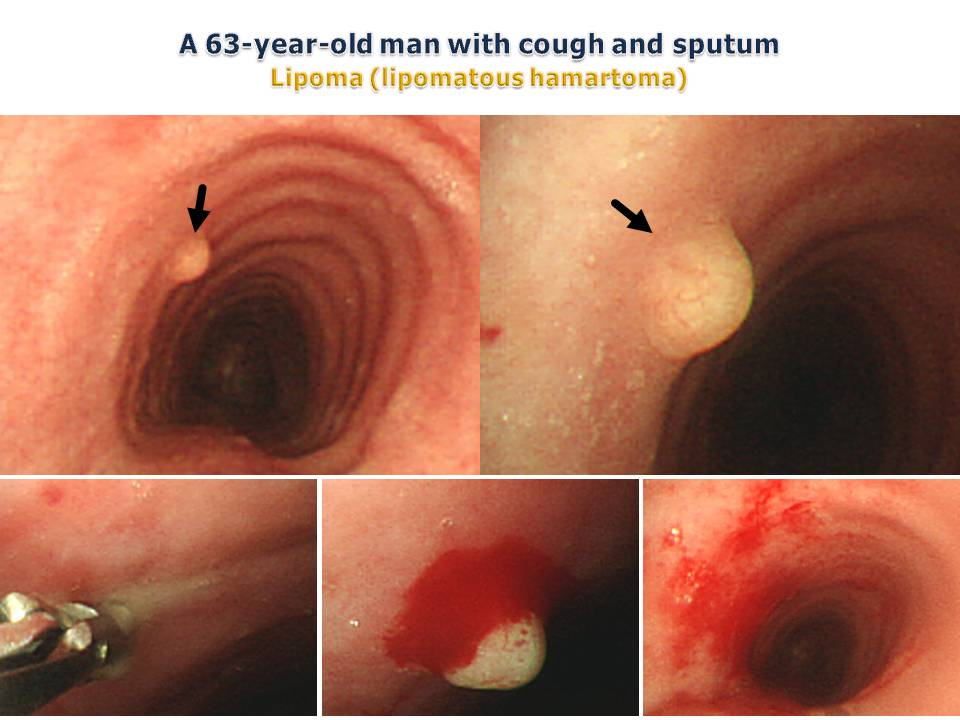 A 63-year-old man with cough and sputum