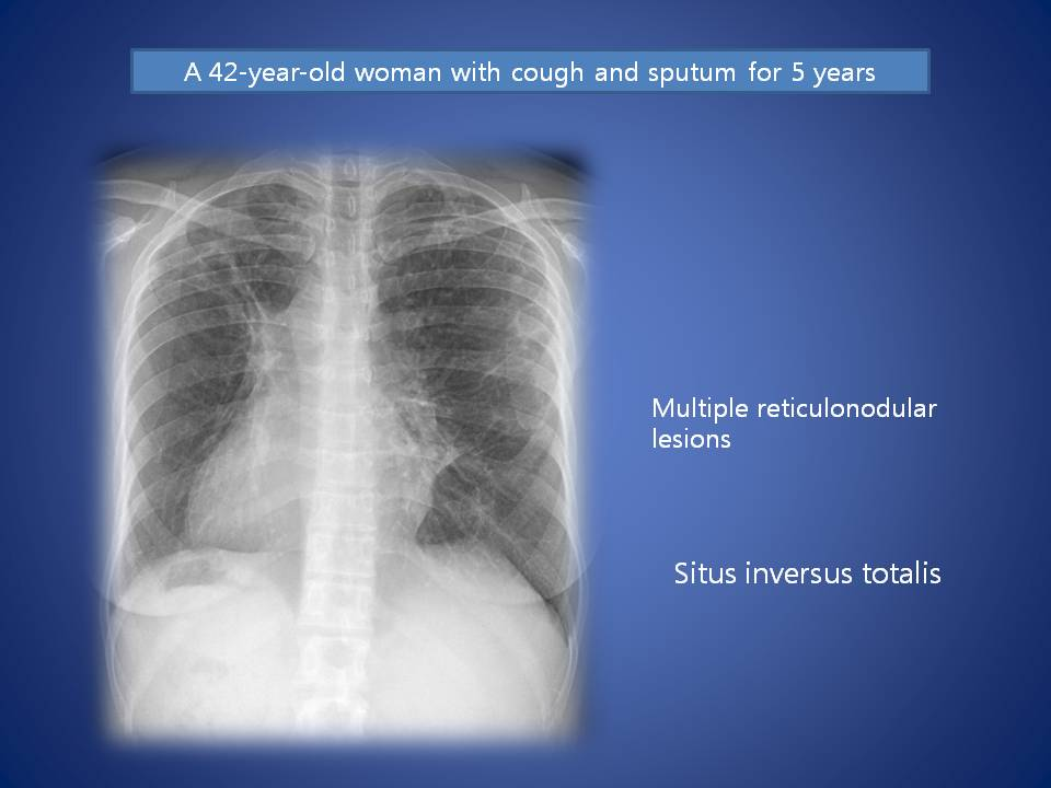 A 42-year-old woman with cough and sputum for 5 years