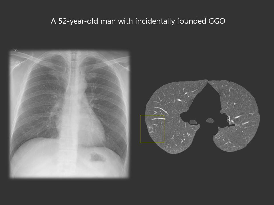 A 52-year-old man with incidentally founded lung nodules and GGO (infarction)
