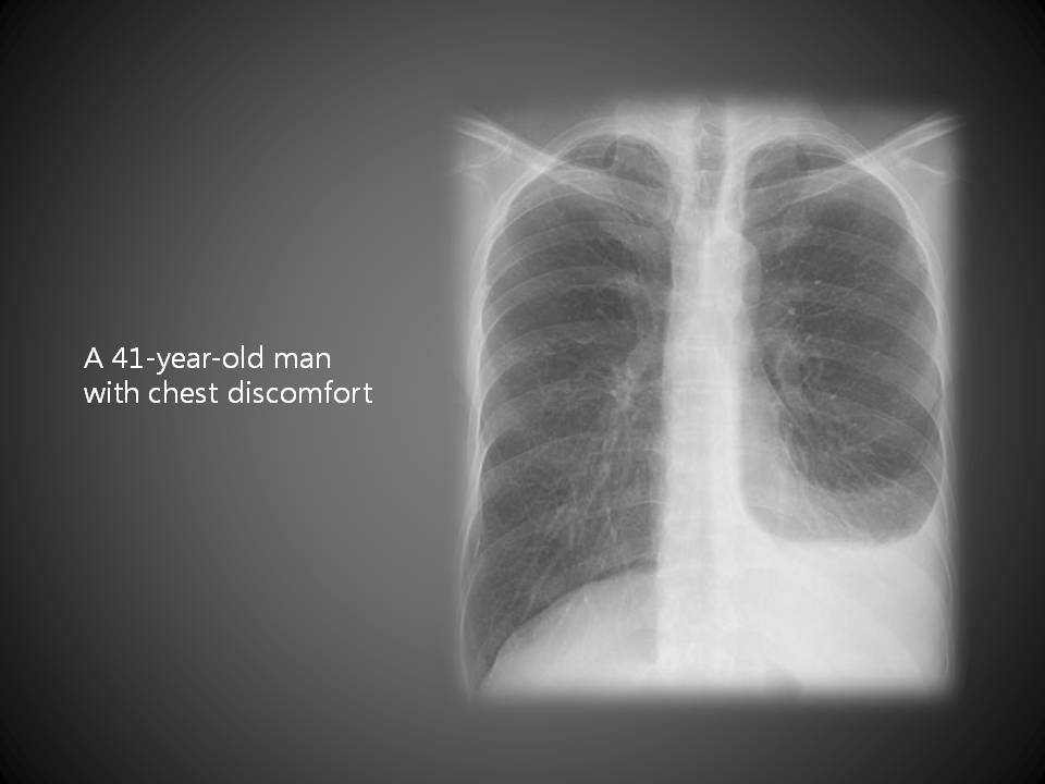 A 41-year-old man with chest discomfort