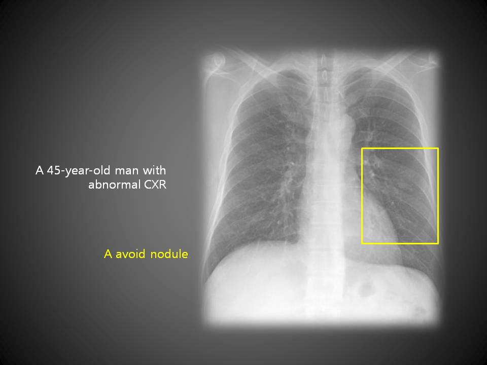 A 45-year-old man with abnormal CXR