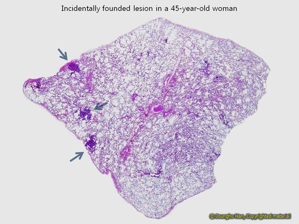 Incidentally found lesions in a 45-year-old woman