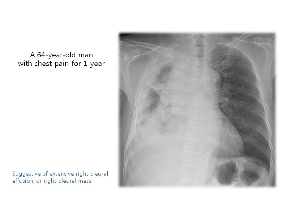 A 64-year-old man with chest pain for 1 year