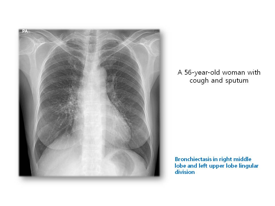 A 56-year-old woman with cough and sputum
