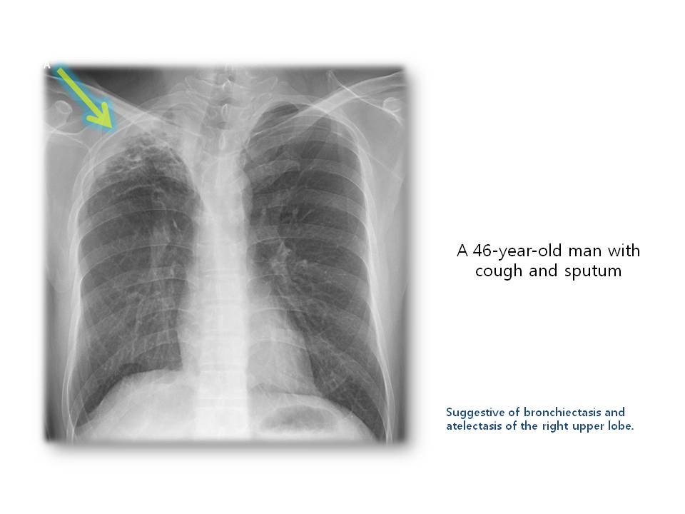 A 46-year-old man with cough and sputum