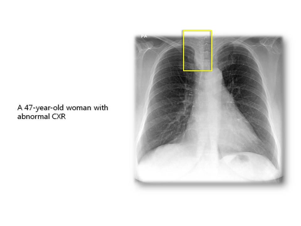 건강검진 흉부 방사선 소견상 이상이 발견되어 내원한 49세 남자