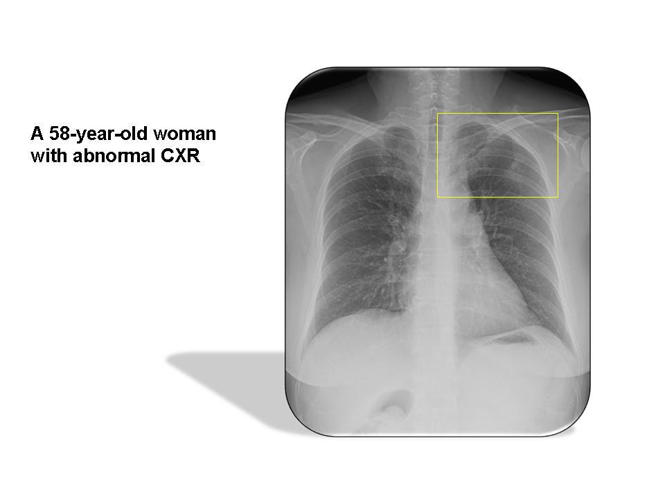 Adenocarcinoma, lung, non-mucinous BAC pattern