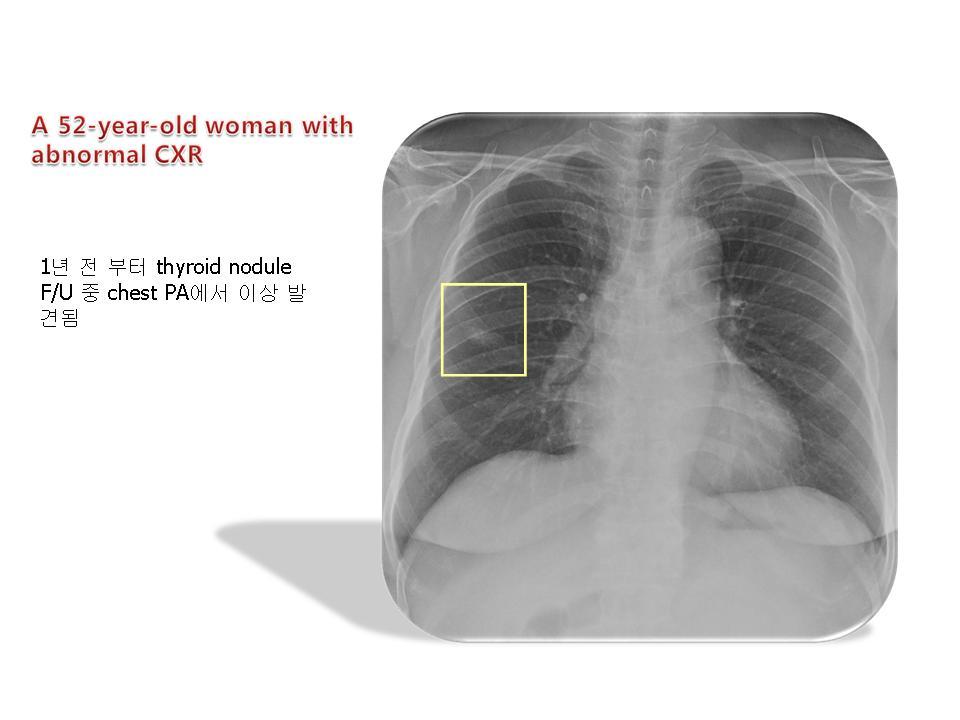 Adenocarcinoma, lung, mucinous BAC pattern
